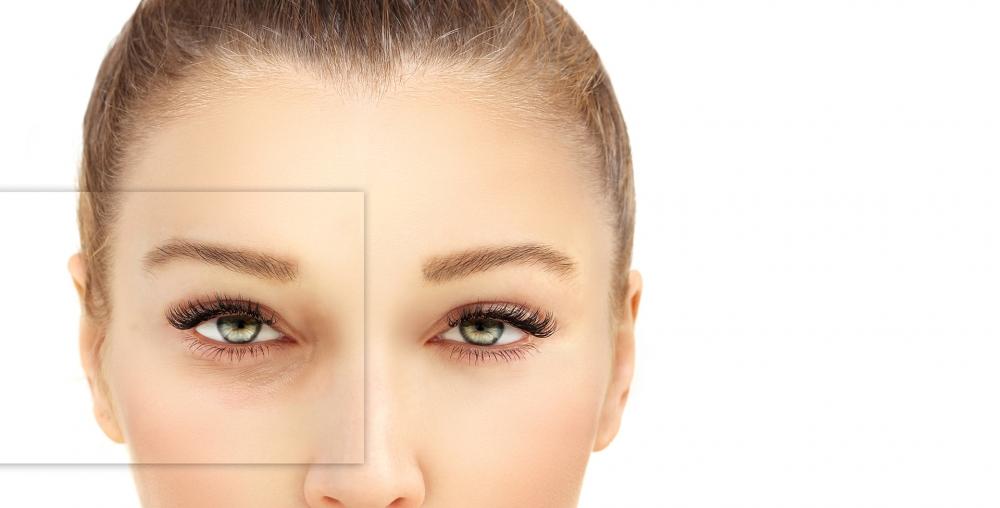 Blepharoplasty - Eyelid Surgery